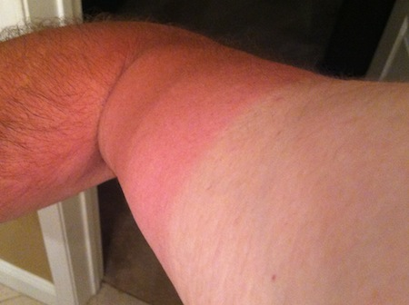 farmers-tan-line-arm