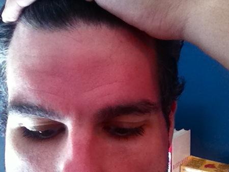 tan-line-forehead