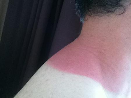 tan-line-shoulder-neck