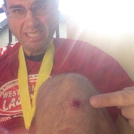 David-Scraped-Knee