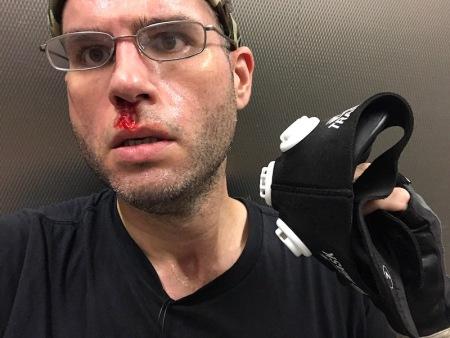 elevation-training-mask-nosebleed